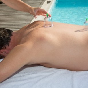 cupping therapy, therapist removes cups from the patient's back