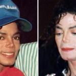 マイケル・ジャクソンの肌が年々白くなっていった理由とは?