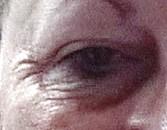 wrinkled-eyes