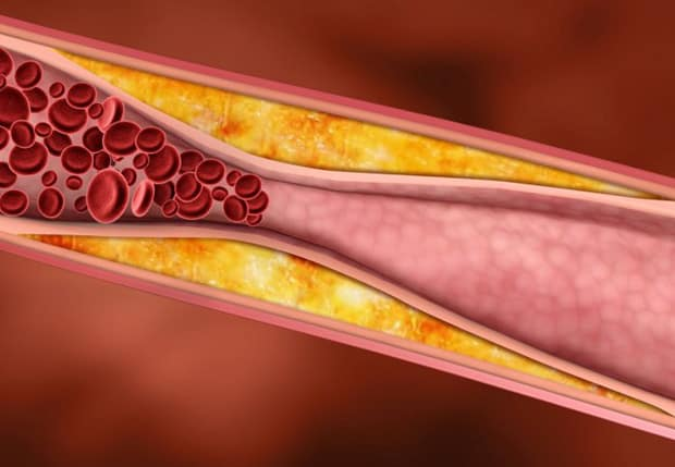 Effects of Testosterone Administration for 3 Years on Subclinical Atherosclerosis Progression in Older Men