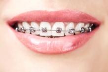 Traditional braces - Mississauga Dentist - Bristol Dental