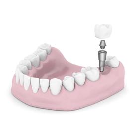 Dental implant - Mississauga Dentist - Bristol Dental