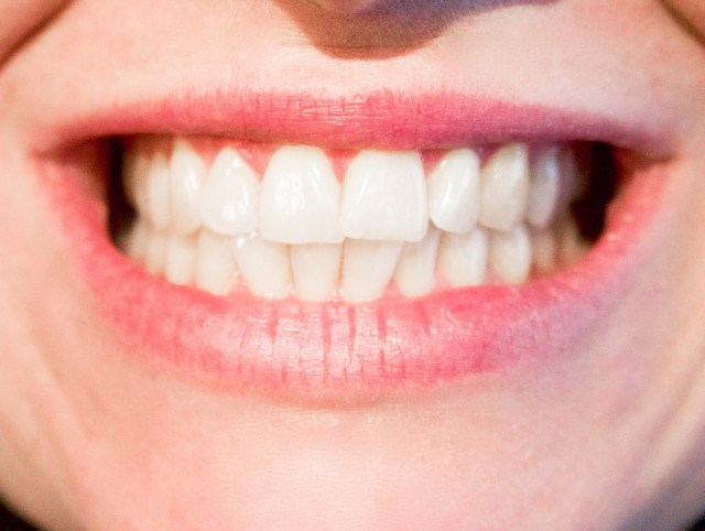 Healthy teeth and gums - Mississauga Dentist - Bristol Dental