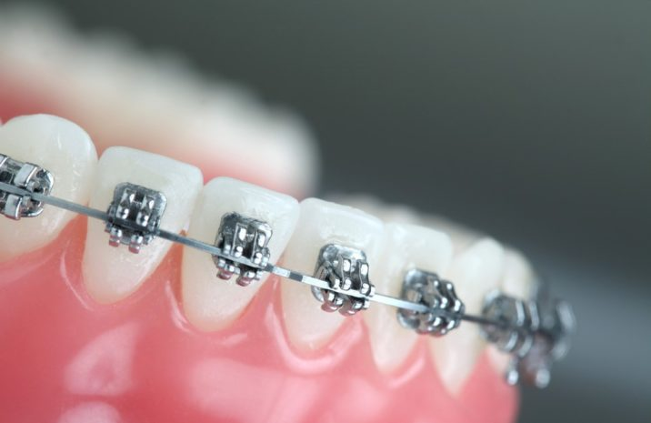 Orthodontist in Mississauga - Mississauga Dentists - Bristol Dental Care