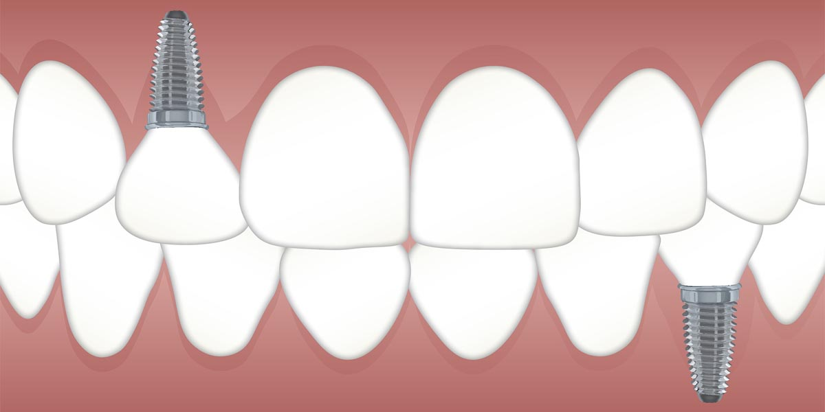Dental Implant Process - Mississauga Dentist - Bristol Dental Care