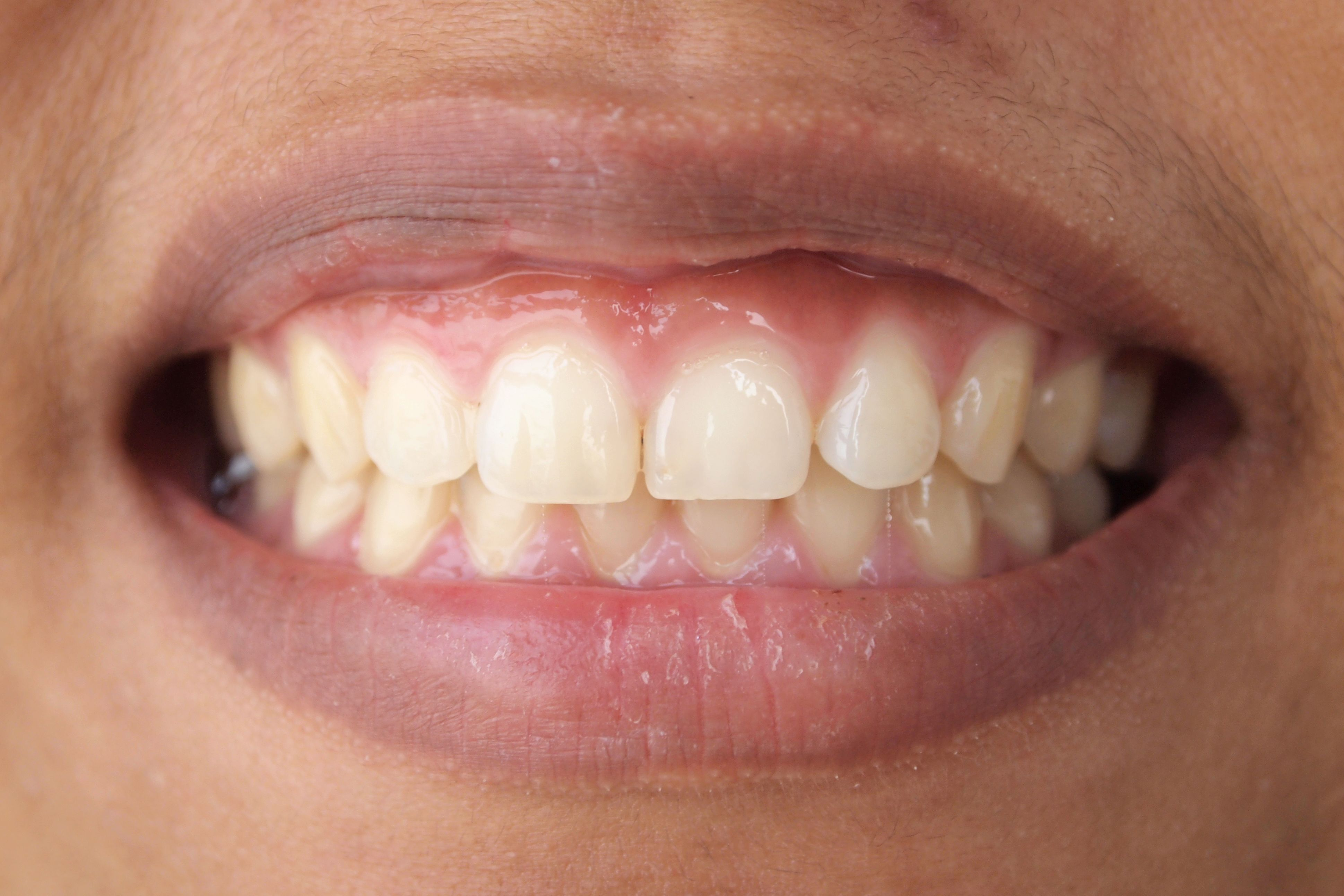 an example gum that needs Gum Contouring