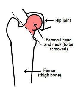 Hip-diagram