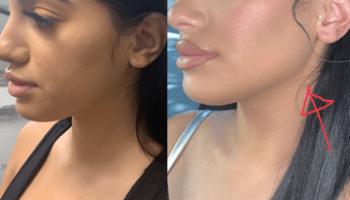 Karla Jara Gets Face Filler With Kylie Jenner's Surgeon