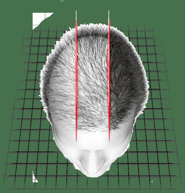 resultados usando hairloss blocker