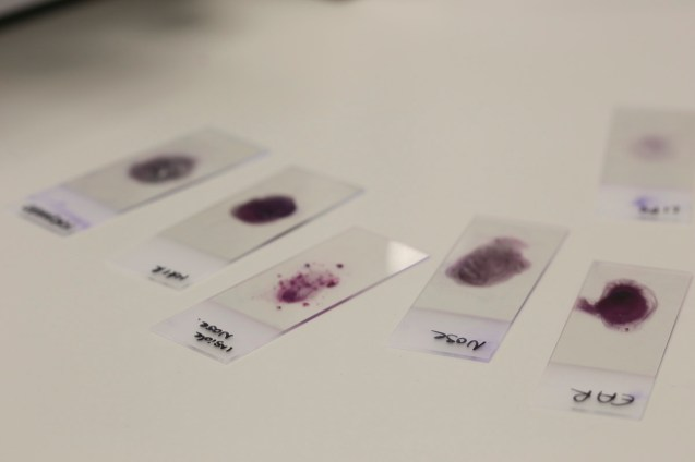 Stained-bacteria-microscope-samples-cultured-from-face-