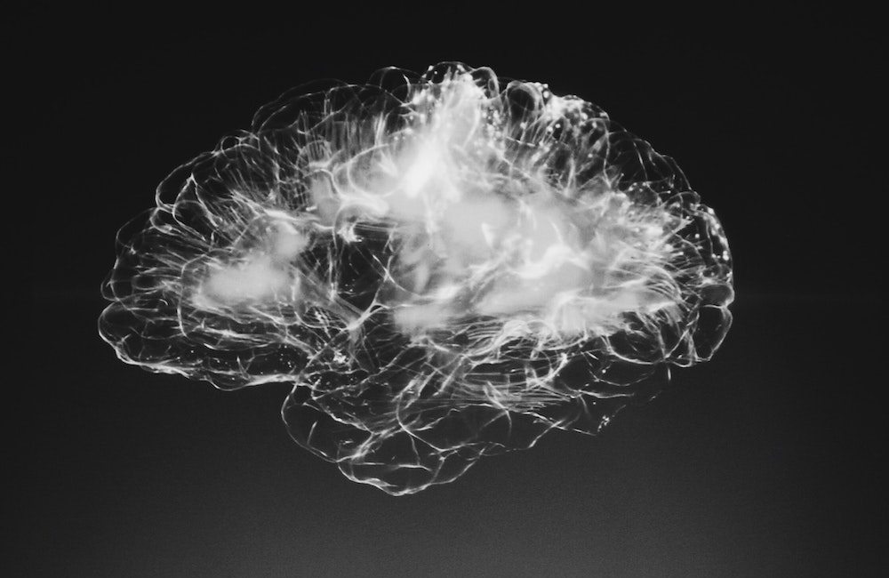 This is your brain on stress.