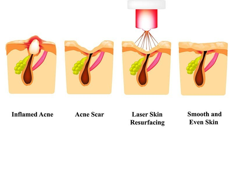 Acne and Laser Acne Scar Treatment