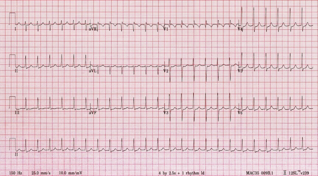 Courtesy LITFL ECG Library