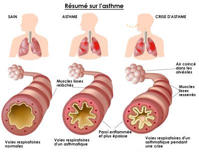 asthme resumé