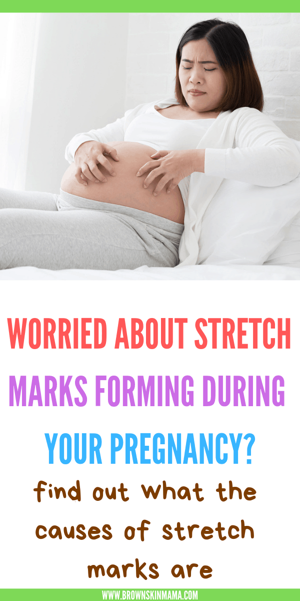 Is it possible to get rid of stretch marks? Who is more susceptible to getting stretch marks after pregnancy? Tips on how to look after your skin during pregnancy.