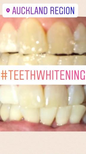 cosmetic-teeth-whitening