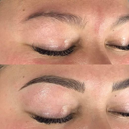 Alyssa right brow before and after microblading strokes only