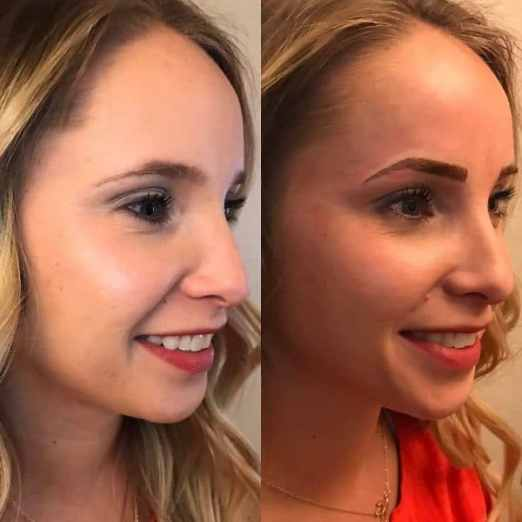 eyebrow microblading blonde hair. microblading before and after blonde hair eyebrow