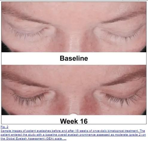 The Best Eyelash Growth Serum: Become a Lash Goddess (2018 ...