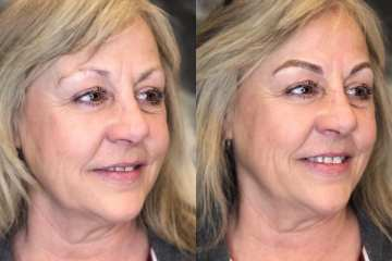 Microblading by Bliss Beauty & Brow Boutique in Kansas City Missouri