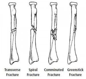 Health and Fitness » Fractures