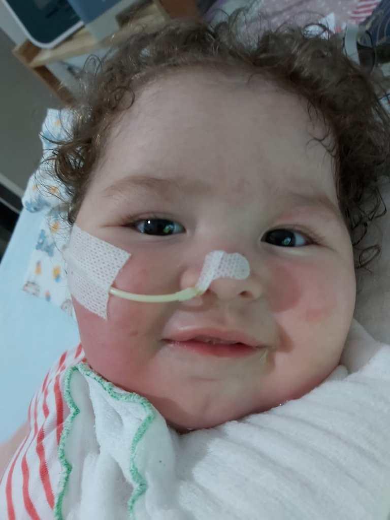 Bebê com atrofia muscular espinhal (AME)