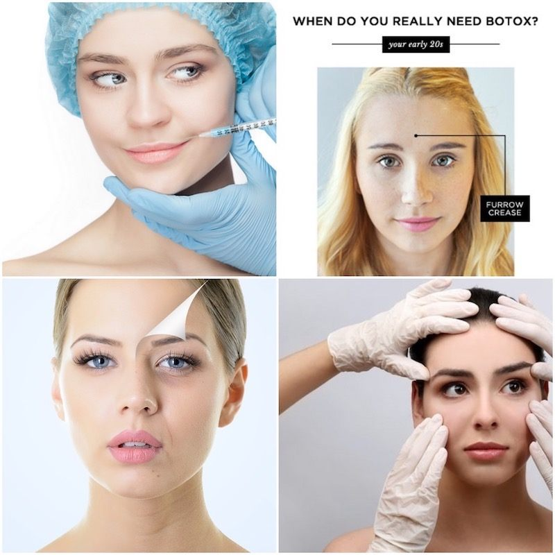 Does Botox Slow Down Ageing