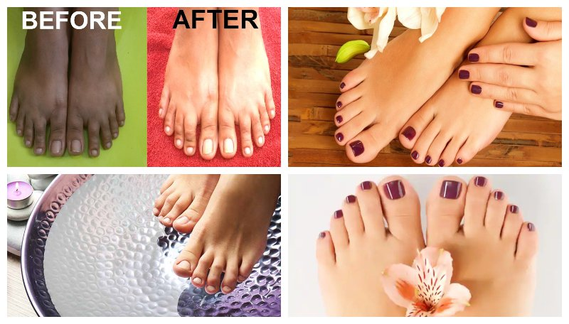 How To Do Feet Whitening Pedicure at Home (1)