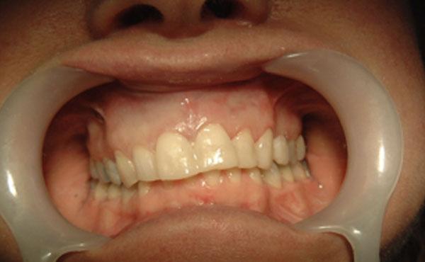 case example 1 B