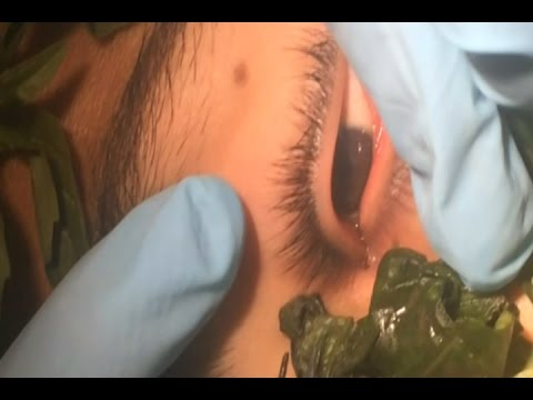 Doctors in Peru use basil to lure worm out of boys eye