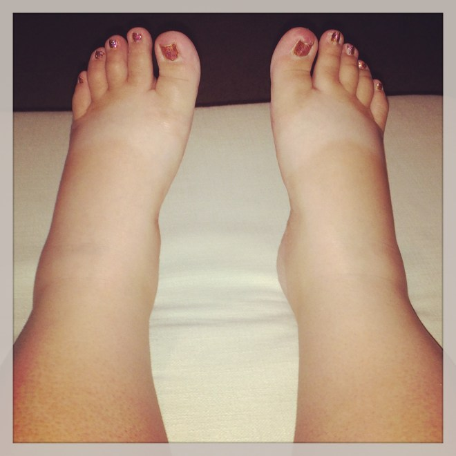 July 21 :: p365 :: year 34 day 266 :: This weekend has not been kind on my body. Unexplained nasty bruises and at one point I actually had ankles. I haven't been this swollen since I was pregnant with Jacey.