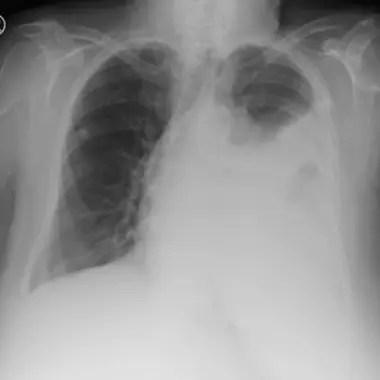 El pulmón derecho del joven colapsó y se redujo un 90 por ciento