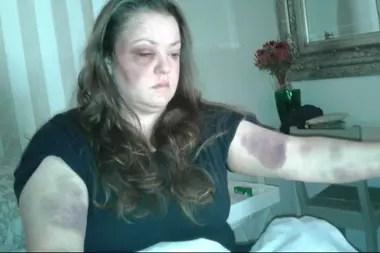 Desireé van Schalkwyk muestra sus heridas luego de que ella y su esposo fueran atacados en una granja en las afueras de Porterville en el Cabo Occidental en noviembre de 2018