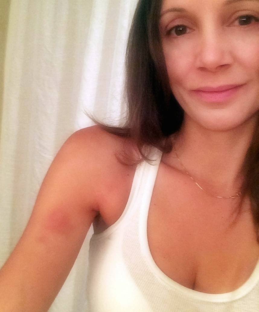 Annette White Skeet Shooting Bruise in Pocono Mountains