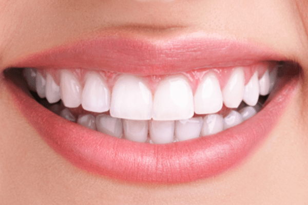 dallas teeth whitening