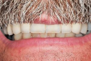 dallas mini dental implants