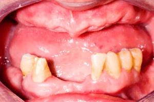 mini dental implants dallas