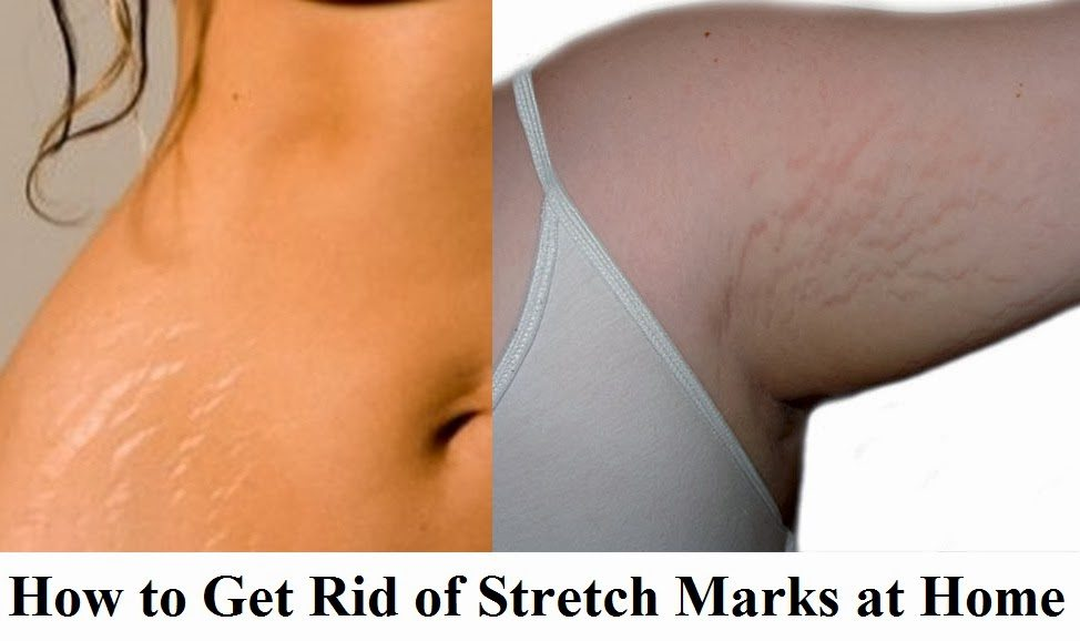 Red Stretch Markss Postpartum