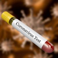 Епидемиолог: Коронавирусът ще дойде в България и ще настъпи ужас