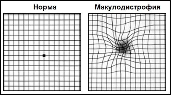 https://budtezzdorovy.ru/вмд