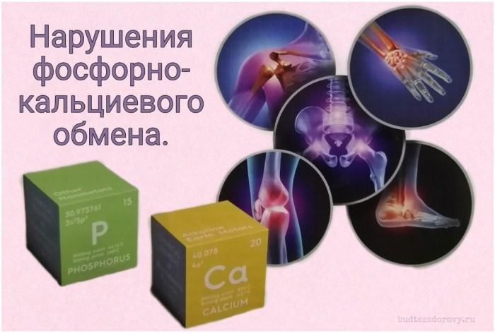 https://budtezzdorovy.ru/ Нарушения фосфорно-кальциевого обмена.
