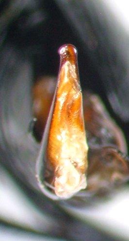 Genitalia of Pterostichus stygicus