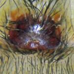 Brown Spider; Annie P,, NW Austin, TX; Epigynum