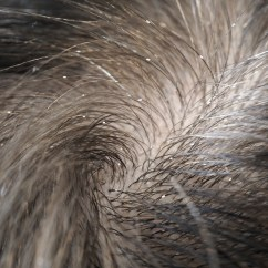 Can Dog Fleas Live In Sofas Deep Corner Sofa Uk Lice Control And Treatments For The Home Clothing Hair