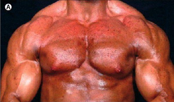 Mesterolone Proviron geriamieji anaboliniai steroidai CAS 24 1424-00-6