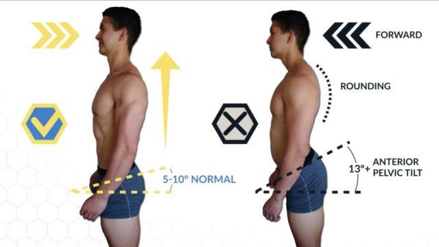 Bad posture excessive sitting