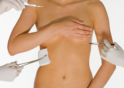 Para melhorar (mesmo!) as estrias normalmente são necessários vários tratamento.