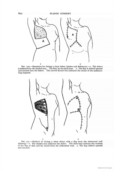 The book that established plastic surgery in the U.S