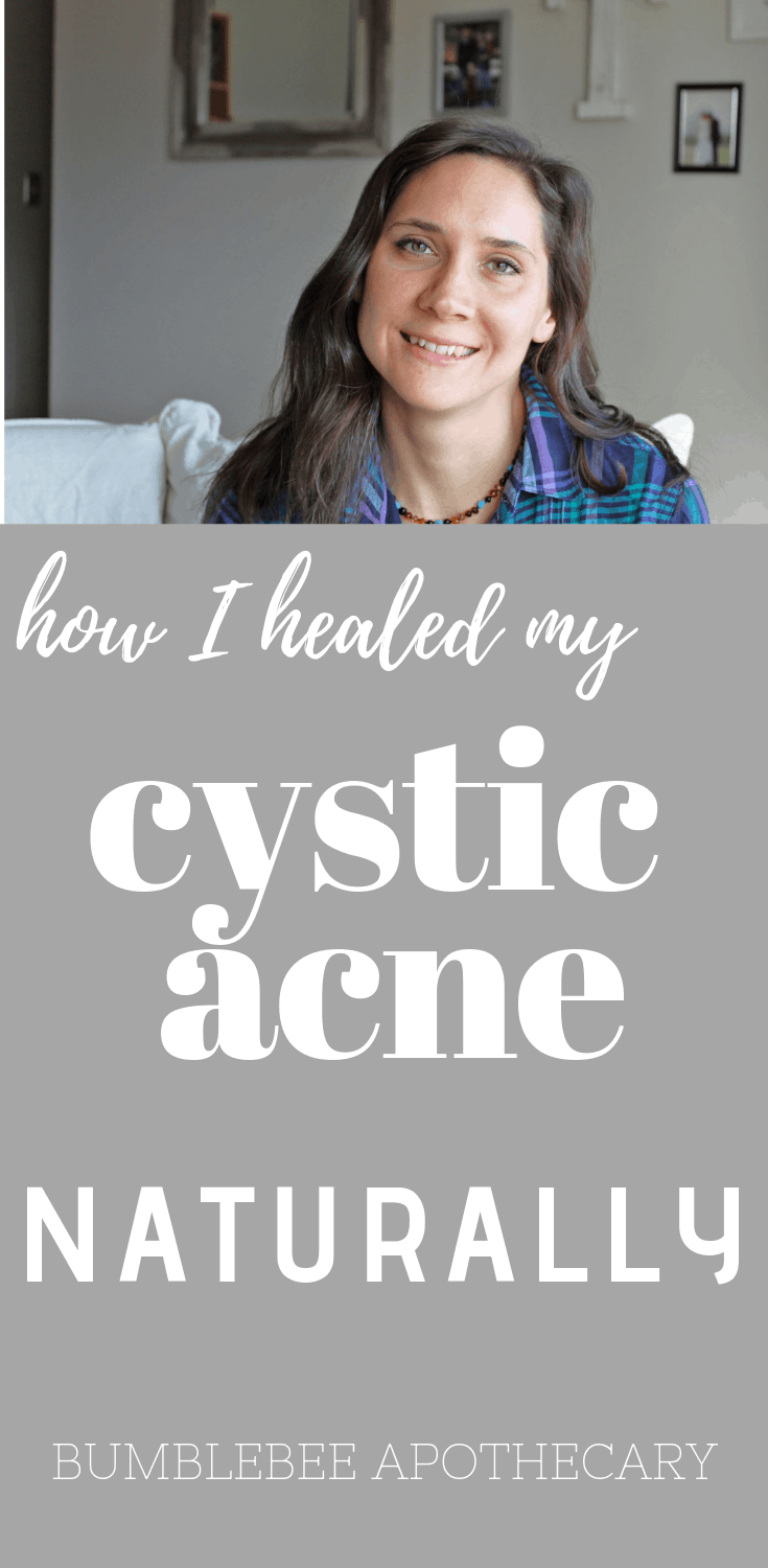 How to clear acne naturally   How to heal cystic acne   Heal acne with diet #clearacne #healacne #healacnefast #healcysticacne #healskin #guthealth