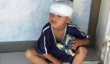 Palestina - Anak Cedera